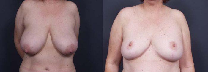 Breast Lift Patient 2 | Dr. Shaun Parson Plastic Surgery Scottsdale Arizona