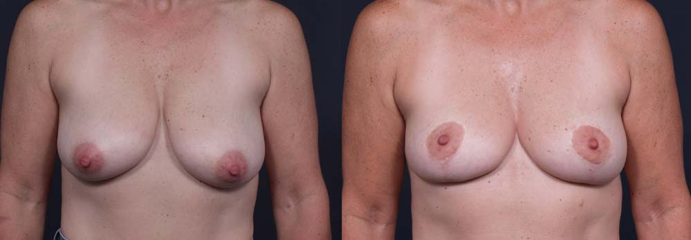 Breast Lift Patient 3a | Dr. Shaun Parson Plastic Surgery Scottsdale Arizona
