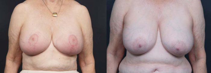 Breast Lift Patient 4a | Dr. Shaun Parson Plastic Surgery Scottsdale Arizona