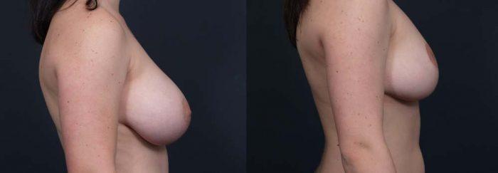 Breast Lift Patient 5 | Dr. Shaun Parson Plastic Surgery Scottsdale Arizona