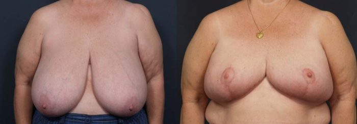 Breast lift patient photos will know