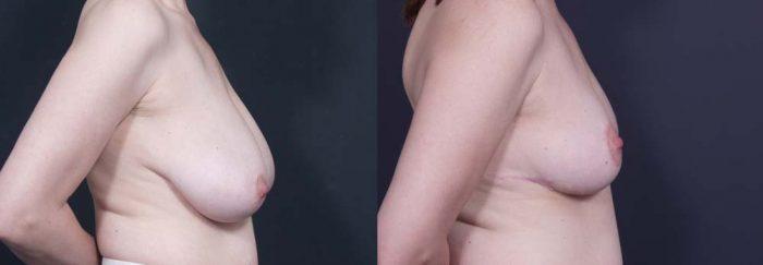 Breast Lift Patient 7 | Dr. Shaun Parson Plastic Surgery Scottsdale Arizona