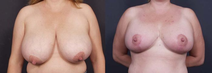 Breast Lift Patient 8a | Dr. Shaun Parson Plastic Surgery Scottsdale Arizona