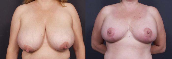 Breast Lift Patient 8a | Dr. Shaun Parson Plastic Surgery Scottsdale Arizona
