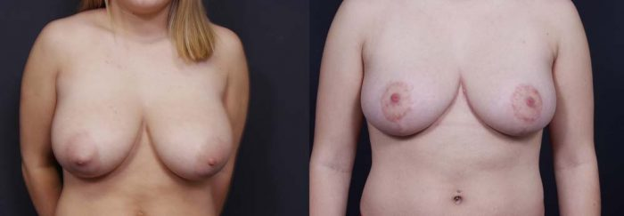Breast Lift Patient 9 | Dr. Shaun Parson Plastic Surgery Scottsdale Arizona