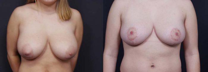 Breast Lift Patient 9 | Dr. Shaun Parson Plastic Surgery Scottsdale Arizona