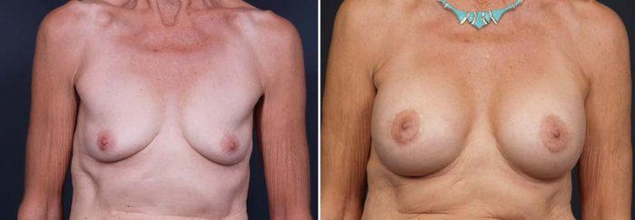 Breast Lift Peri Aug Patient 17 | Dr. Shaun Parson Plastic Surgery Scottsdale Arizona