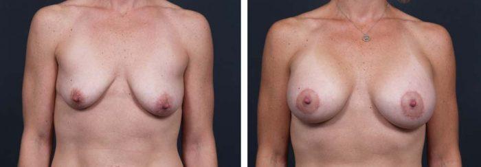 Breast Lift Peri Aug Patient 18 | Dr. Shaun Parson Plastic Surgery Scottsdale Arizona