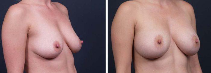 Breast Lift Peri Aug Patient 19a | Dr. Shaun Parson Plastic Surgery Scottsdale Arizona
