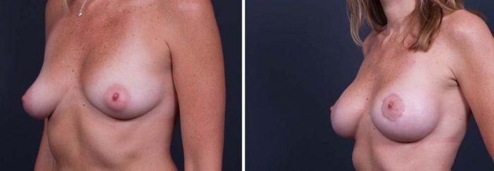Breast Lift Peri Aug Patient 20a | Dr. Shaun Parson Plastic Surgery Scottsdale Arizona