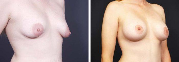 Breast Lift Peri Aug Patient 21a | Dr. Shaun Parson Plastic Surgery Scottsdale Arizona