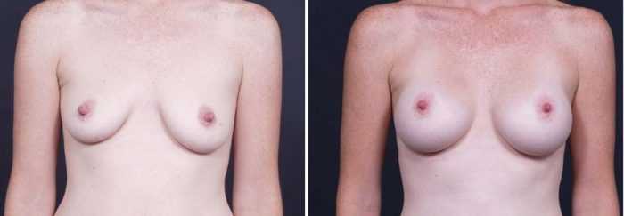 Breast Lift Peri Aug Patient 22a | Dr. Shaun Parson Plastic Surgery Scottsdale Arizona