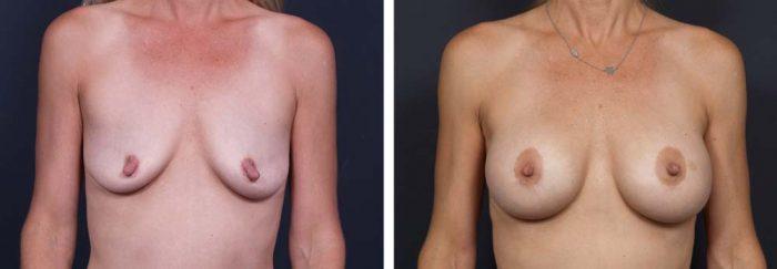Breast Lift Peri Aug Patient 23a | Dr. Shaun Parson Plastic Surgery Scottsdale Arizona