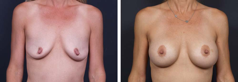Breast Lift Peri Aug Patient 23a | Dr. Shaun Parson Plastic Surgery Scottsdale Arizona