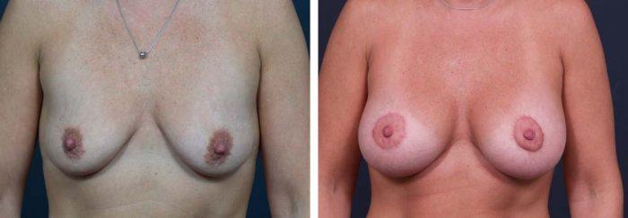 Breast Lift Peri Aug Patient 24a | Dr. Shaun Parson Plastic Surgery Scottsdale Arizona