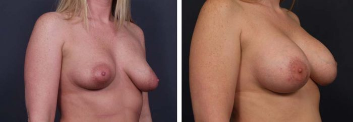 Breast Lift with Peri-Areolar Augmentation Patient 26 | Dr. Shaun Parson Plastic Surgery Scottsdale Arizona