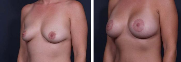 Breast Lift Peri Aug Patient 27a | Dr. Shaun Parson Plastic Surgery Scottsdale Arizona