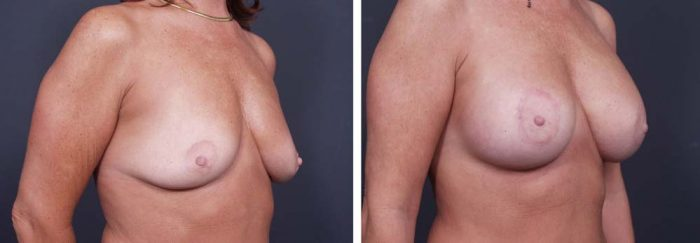 Breast Lift Peri Aug Patient 28a | Dr. Shaun Parson Plastic Surgery Scottsdale Arizona