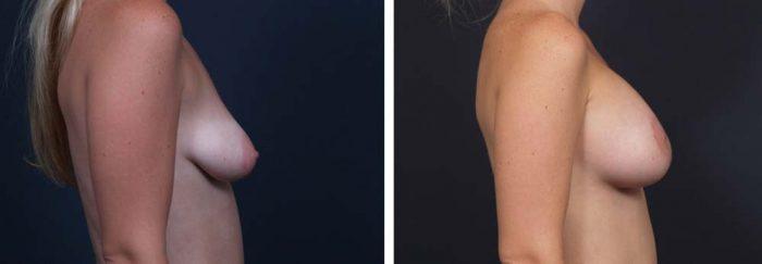 Breast Lift Peri Aug Patient 29a | Dr. Shaun Parson Plastic Surgery Scottsdale Arizona
