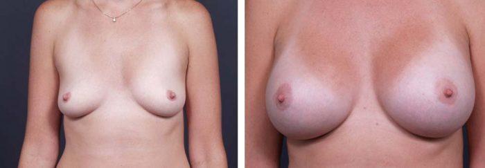 Breast Lift Peri Aug Patient 30a | Dr. Shaun Parson Plastic Surgery Scottsdale Arizona