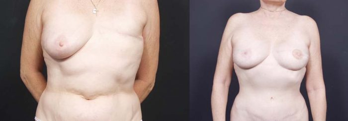 Breast Reconstruction Patient 1 | Dr. Shaun Parson Plastic Surgery Scottsdale Arizona