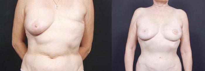 Breast Reconstruction Patient 1 | Dr. Shaun Parson Plastic Surgery Scottsdale Arizona