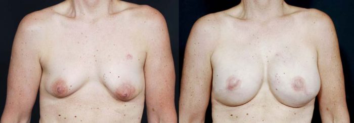 Breast Reconstruction Patient 10 | Dr. Shaun Parson Plastic Surgery Scottsdale Arizona