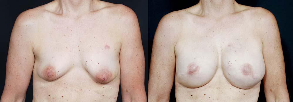 Breast Reconstruction Patient 10 | Dr. Shaun Parson Plastic Surgery Scottsdale Arizona