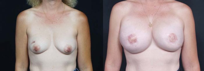 Breast Reconstruction Patient 11 | Dr. Shaun Parson Plastic Surgery Scottsdale Arizona