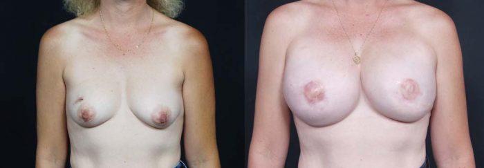Breast Reconstruction Patient 11 | Dr. Shaun Parson Plastic Surgery Scottsdale Arizona