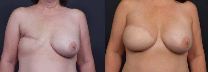 Breast Reconstruction Patient 12 | Dr. Shaun Parson Plastic Surgery Scottsdale Arizona