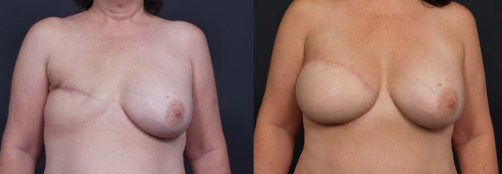 Breast Reconstruction Patient 12 | Dr. Shaun Parson Plastic Surgery Scottsdale Arizona