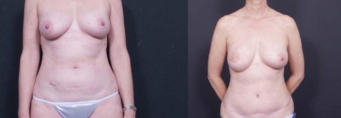 Breast Reconstruction Patient 13 | Dr. Shaun Parson Plastic Surgery Scottsdale Arizona