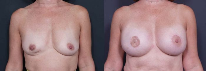 Breast Reconstruction Patient 2 | Dr. Shaun Parson Plastic Surgery Scottsdale Arizona