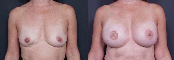 Breast Reconstruction Patient 2 | Dr. Shaun Parson Plastic Surgery Scottsdale Arizona