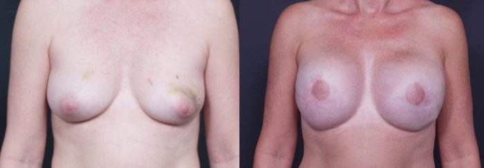Breast Reconstruction Patient 3 | Dr. Shaun Parson Plastic Surgery Scottsdale Arizona
