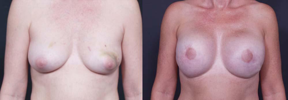 Breast Reconstruction Patient 3 | Dr. Shaun Parson Plastic Surgery Scottsdale Arizona
