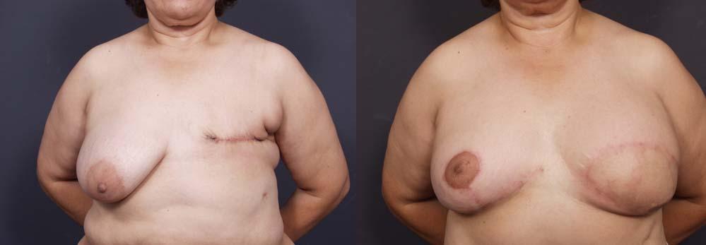 Breast Reconstruction Patient 4 | Dr. Shaun Parson Plastic Surgery Scottsdale Arizona