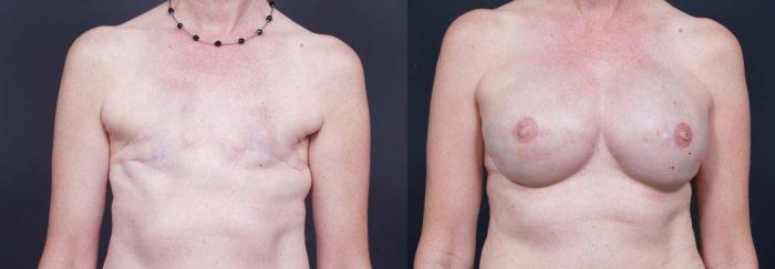 Breast Reconstruction Patient 5 | Dr. Shaun Parson Plastic Surgery Scottsdale Arizona