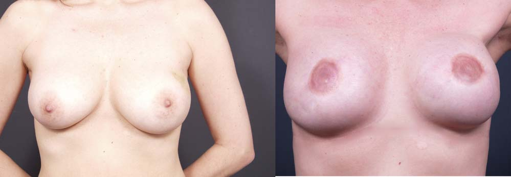 Breast Reconstruction Patient 6 | Dr. Shaun Parson Plastic Surgery Scottsdale Arizona