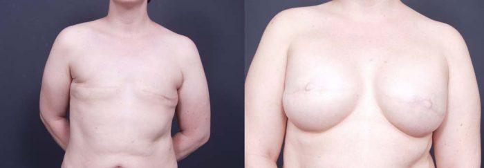 Breast Reconstruction Patient 7 | Dr. Shaun Parson Plastic Surgery Scottsdale Arizona