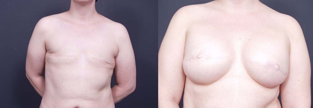 Breast Reconstruction Patient 7 | Dr. Shaun Parson Plastic Surgery Scottsdale Arizona