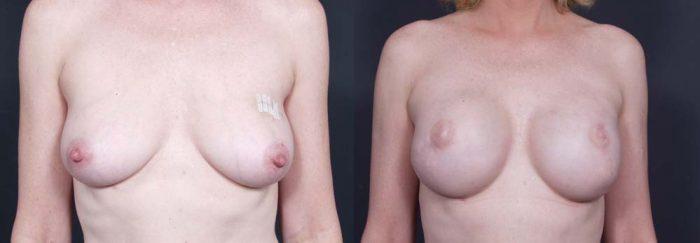 Breast Reconstruction Patient 8 | Dr. Shaun Parson Plastic Surgery Scottsdale Arizona