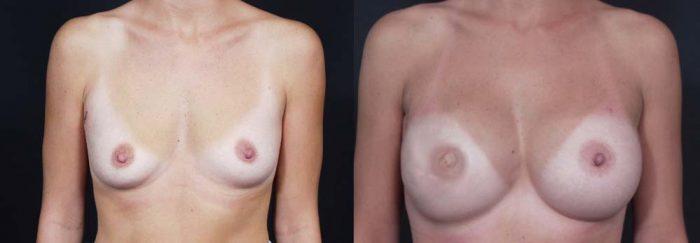 Breast Reconstruction Patient 9 | Dr. Shaun Parson Plastic Surgery Scottsdale Arizona