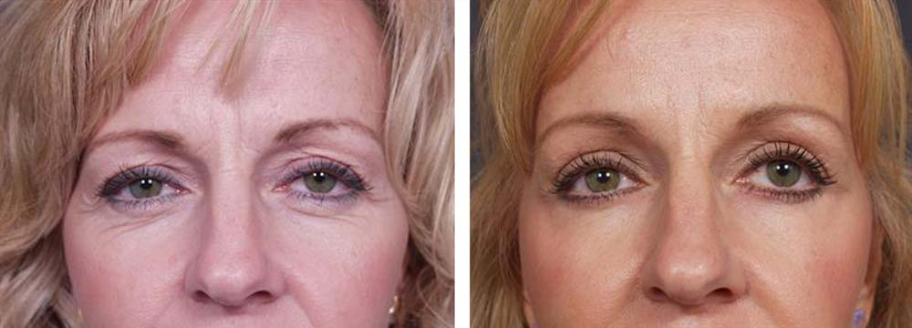 Brow Lift Patient 1 | Dr. Shaun Parson Plastic Surgery Scottsdale Arizona