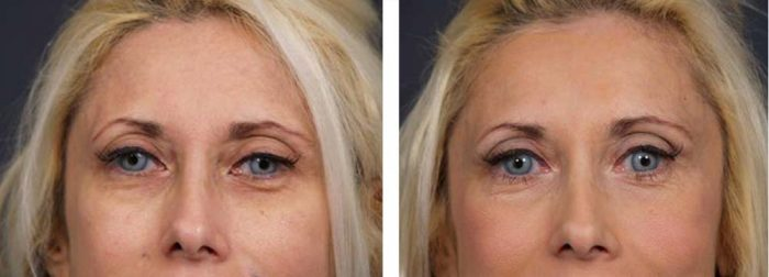 Brow Lift Patient 2 | Dr. Shaun Parson Plastic Surgery Scottsdale Arizona