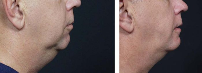 Chin Aug Patient 1 | Dr. Shaun Parson Plastic Surgery Scottsdale Arizona