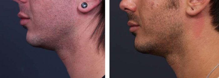 Chin Aug Patient 2 | Dr. Shaun Parson Plastic Surgery Scottsdale Arizona