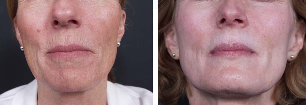 Dermabrasion Patient 1 | Dr. Shaun Parson Plastic Surgery Scottsdale Arizona