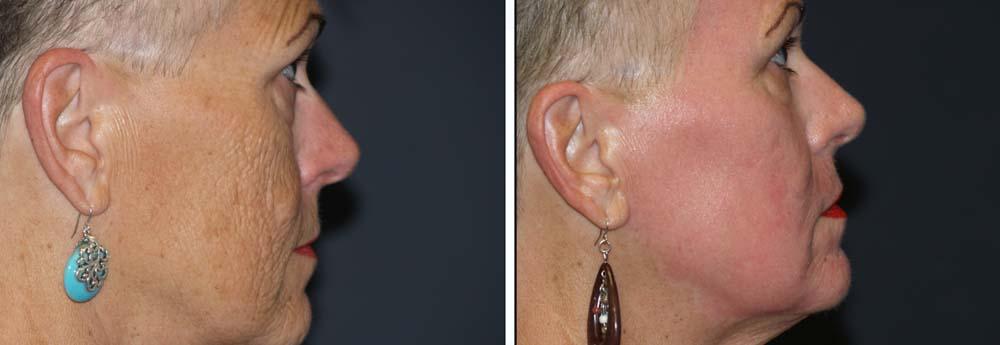 Dermabrasion Patient 2b | Dr. Shaun Parson Plastic Surgery Scottsdale Arizona